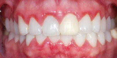 gingivitis-800x400